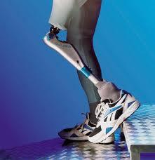 ayak-protezi