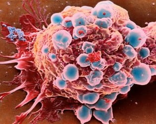 kanser-nedir